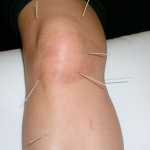 Knee Pain Acupuncture Relief for Knee Arthritis ...